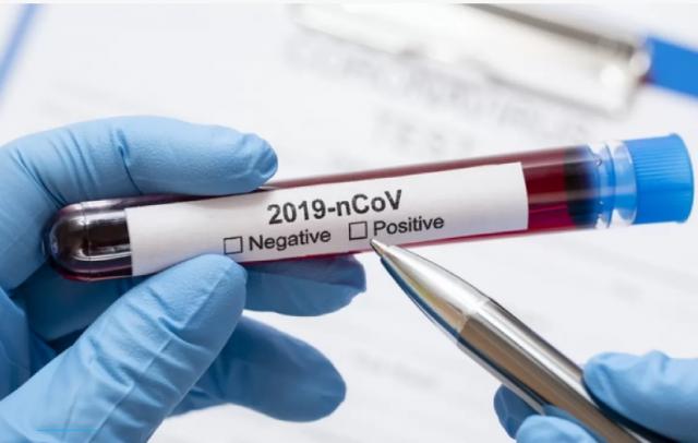 В области новые случаи заражения COVID-19